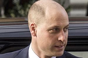 William hair