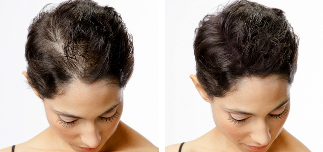 smp hair loss treatments for women