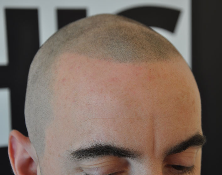 smp for male pattern baldness