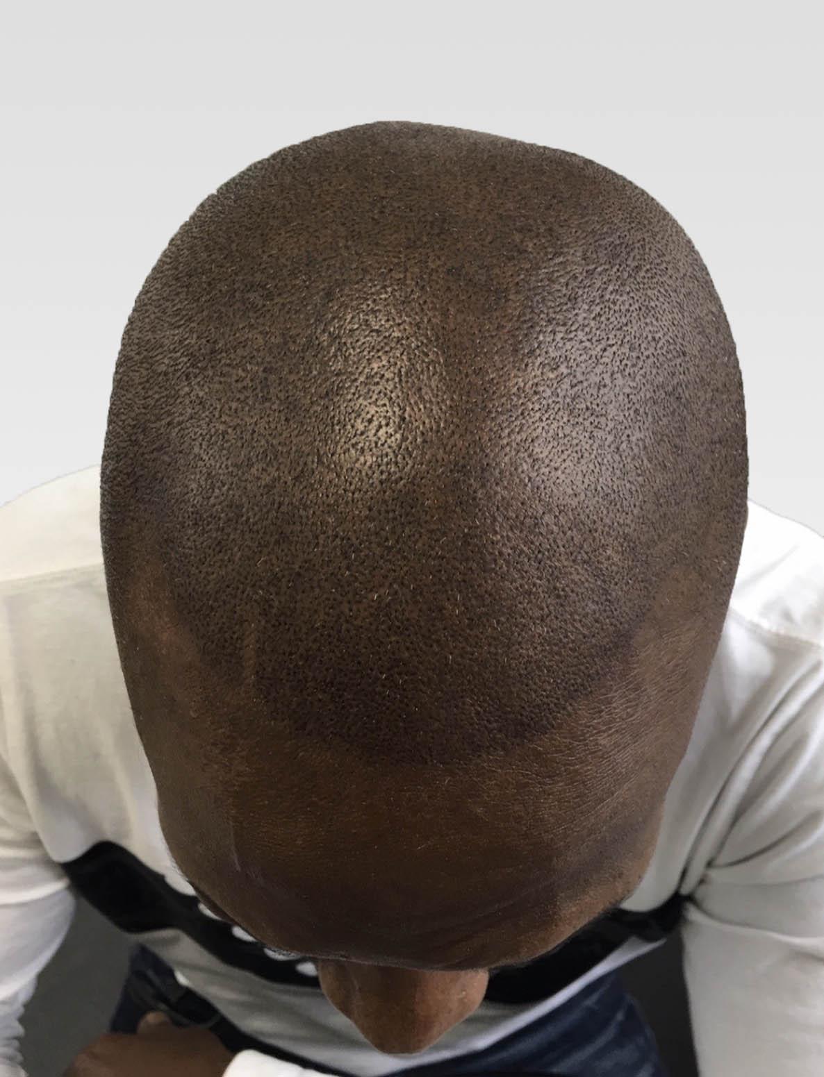 Natural Hairline Effect SMP Birmingham1