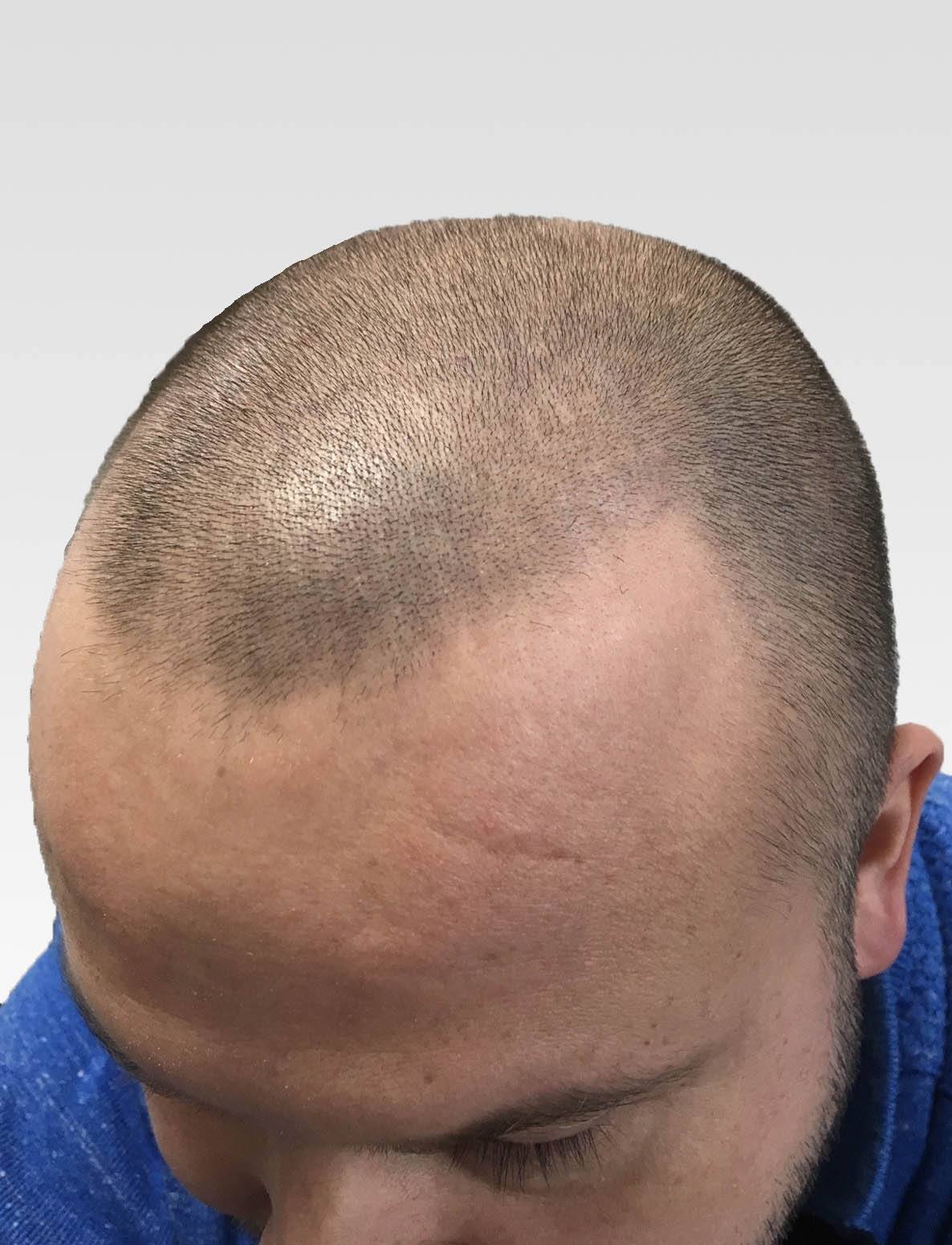 Natural Hairline Effect SMP London1