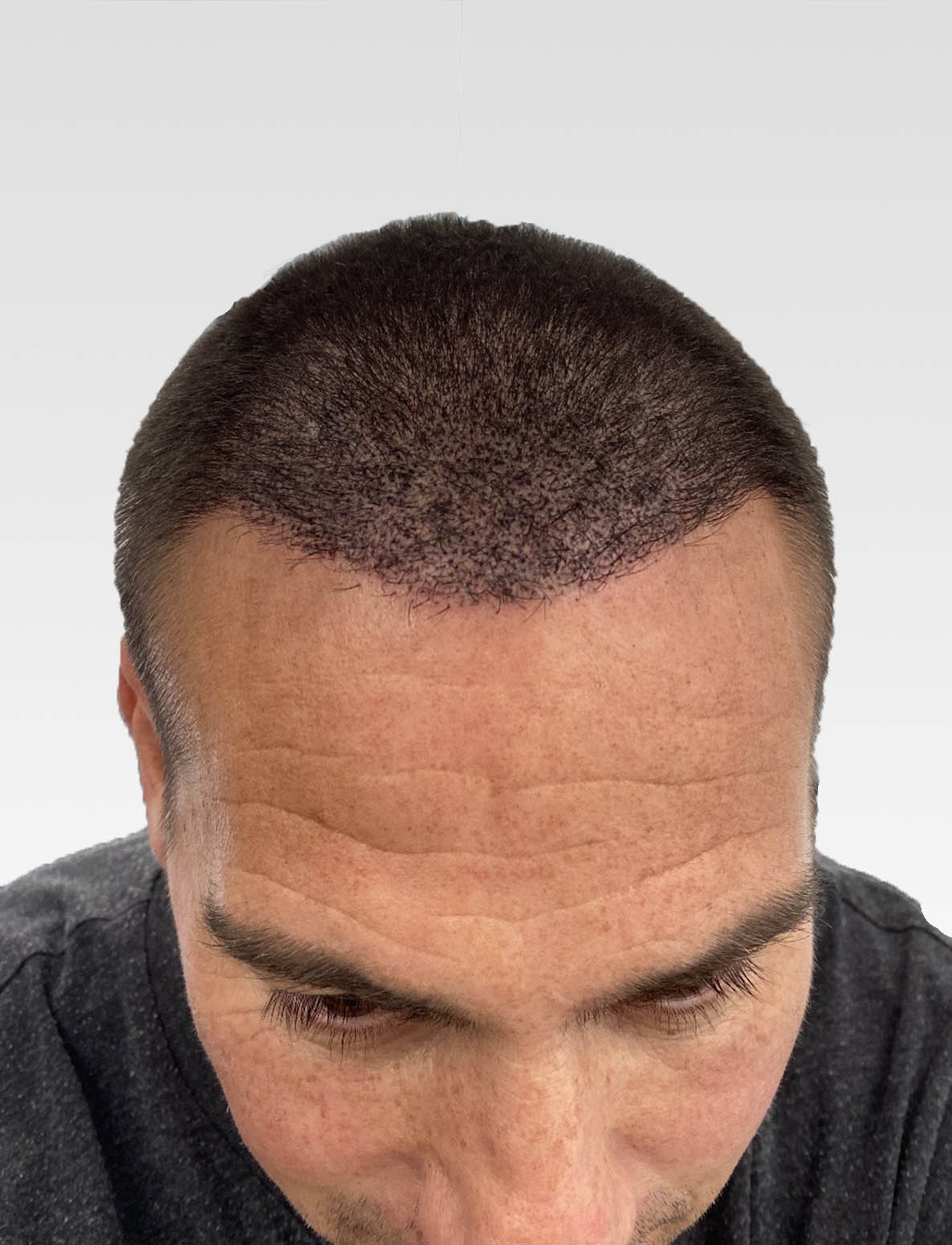 Natural Hairline Effect SMP1
