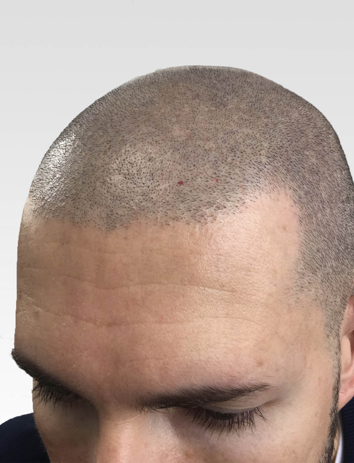 Natural Hairline SMP1