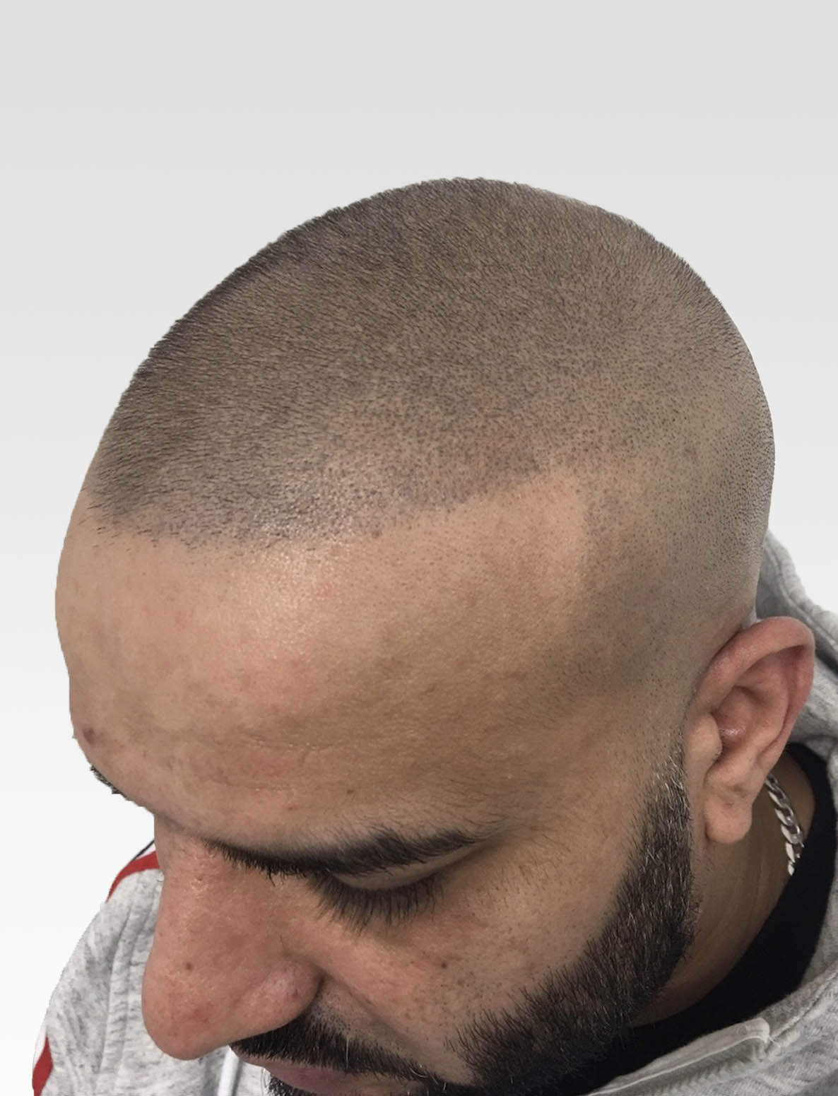 Natural Hairlines with SMP1