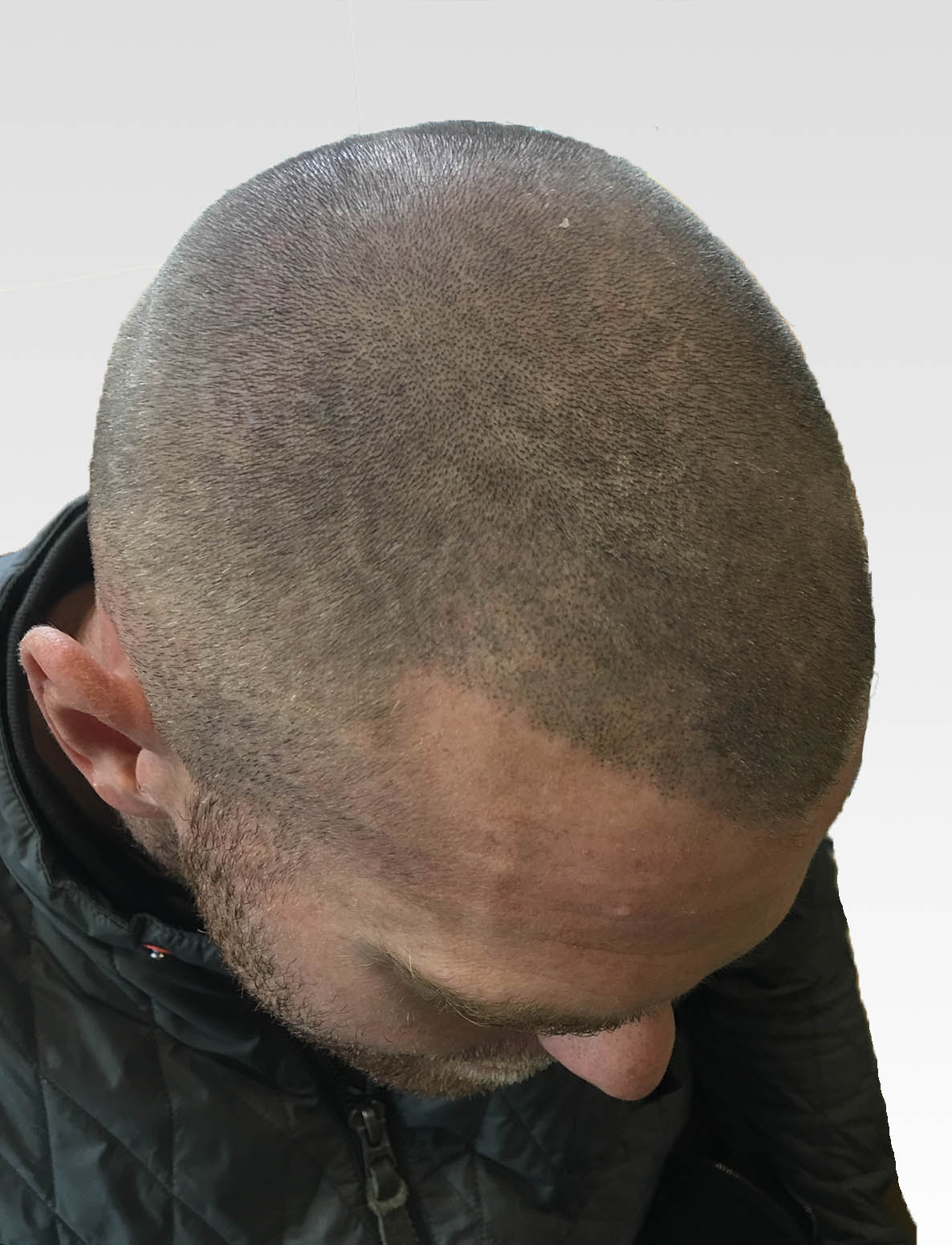 Natural Hairlines with Scalp Micropigmentation Birmingham1