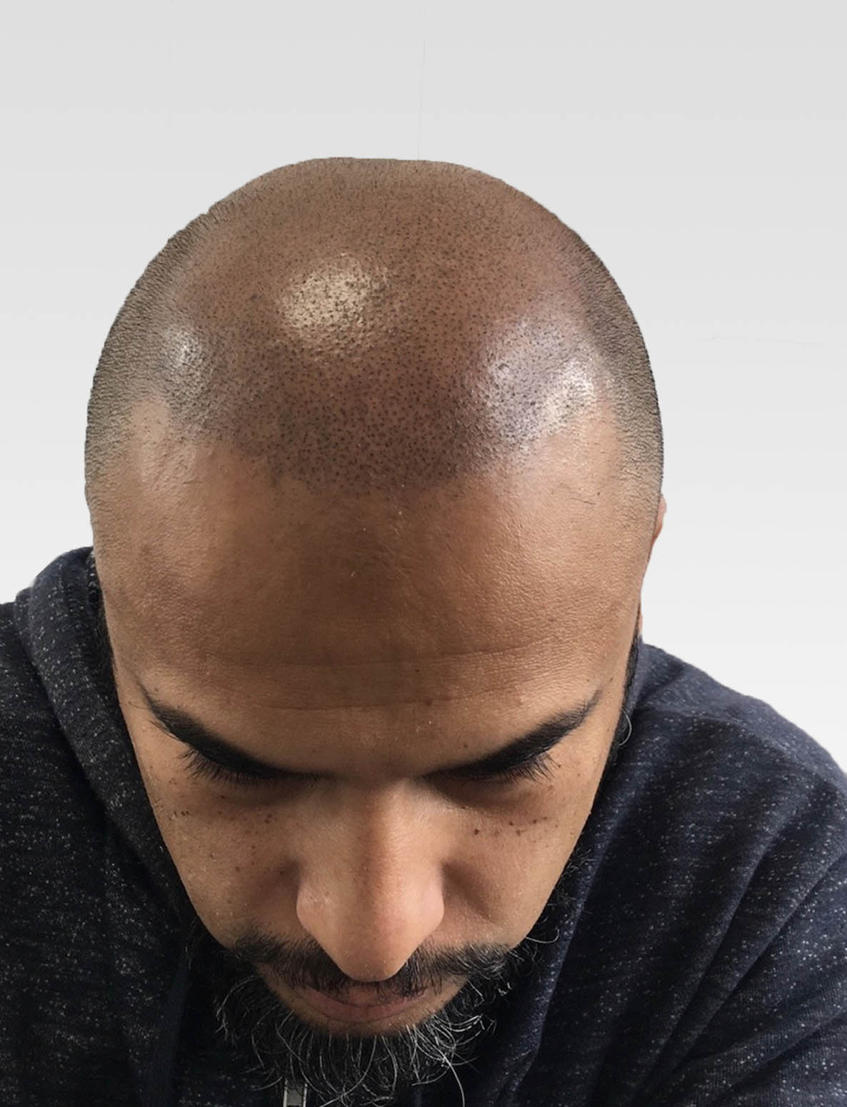 Natural Hairlines with Scalp Micropigmentation London1