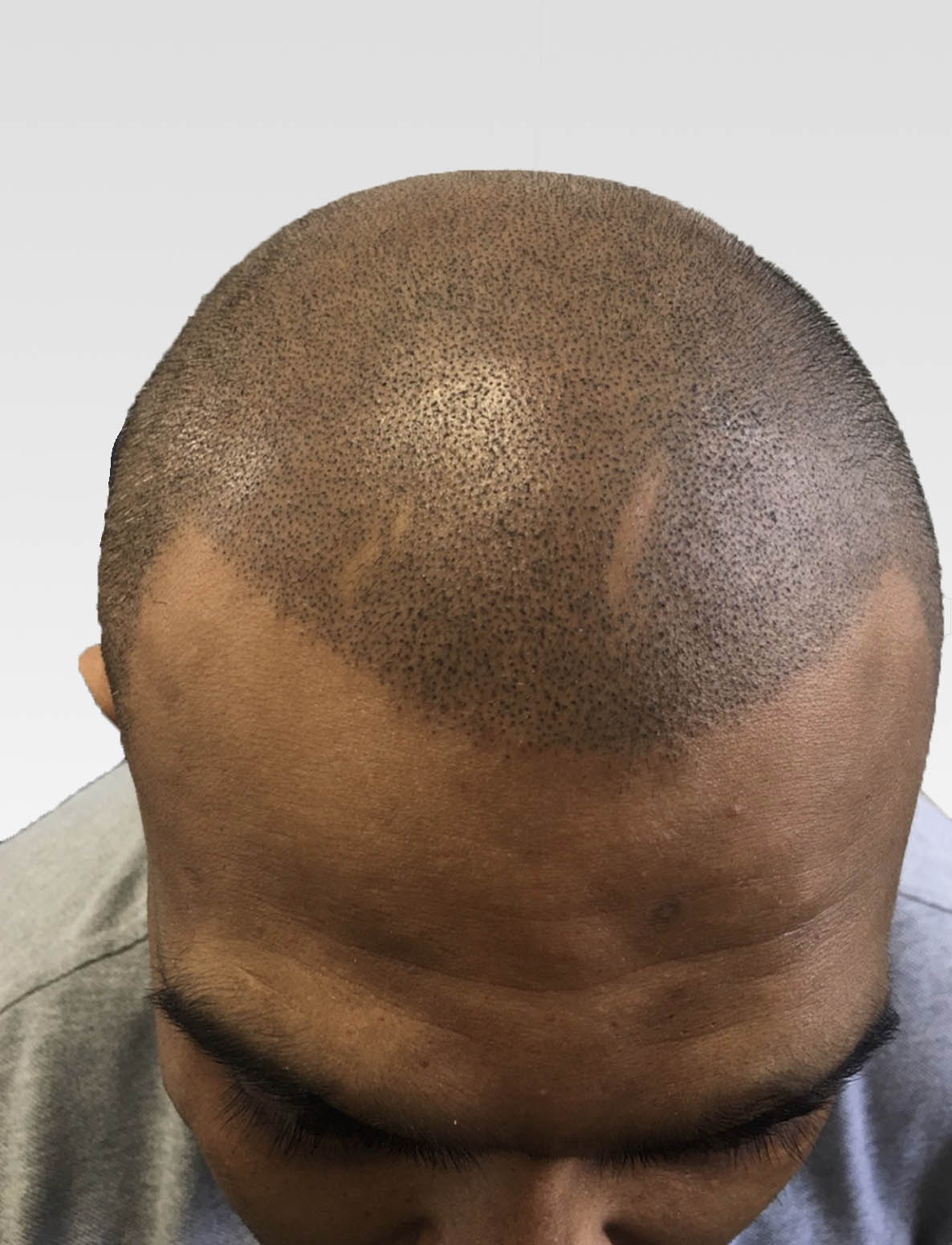Natural Hairlines with Scalp Micropigmentation1