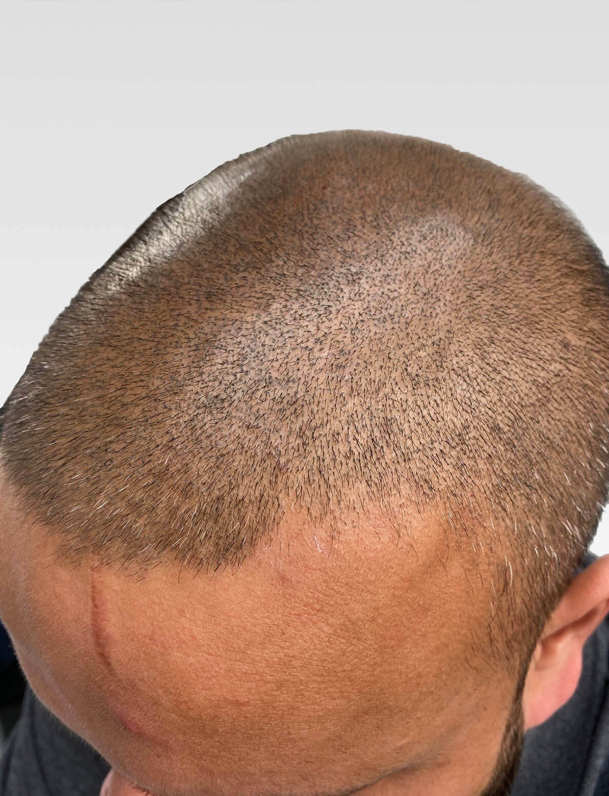 SMP Jagged Hairlines