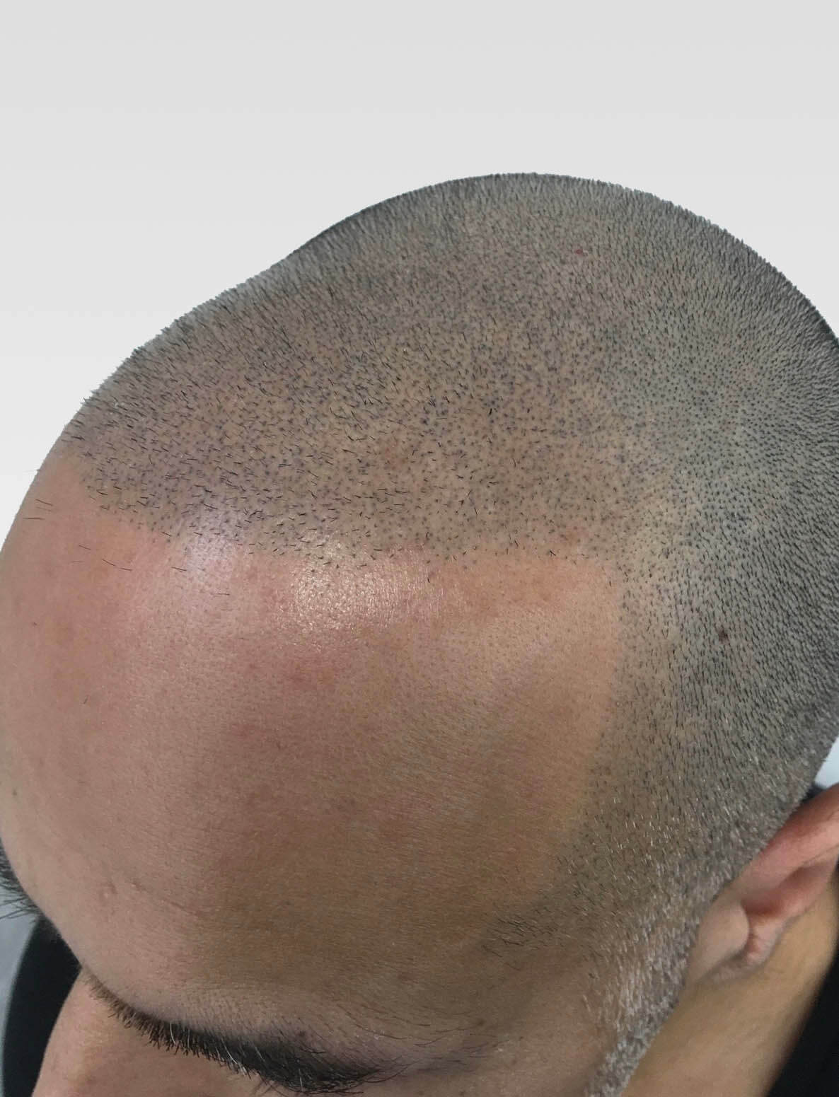 SMP for buzzed grey hair
