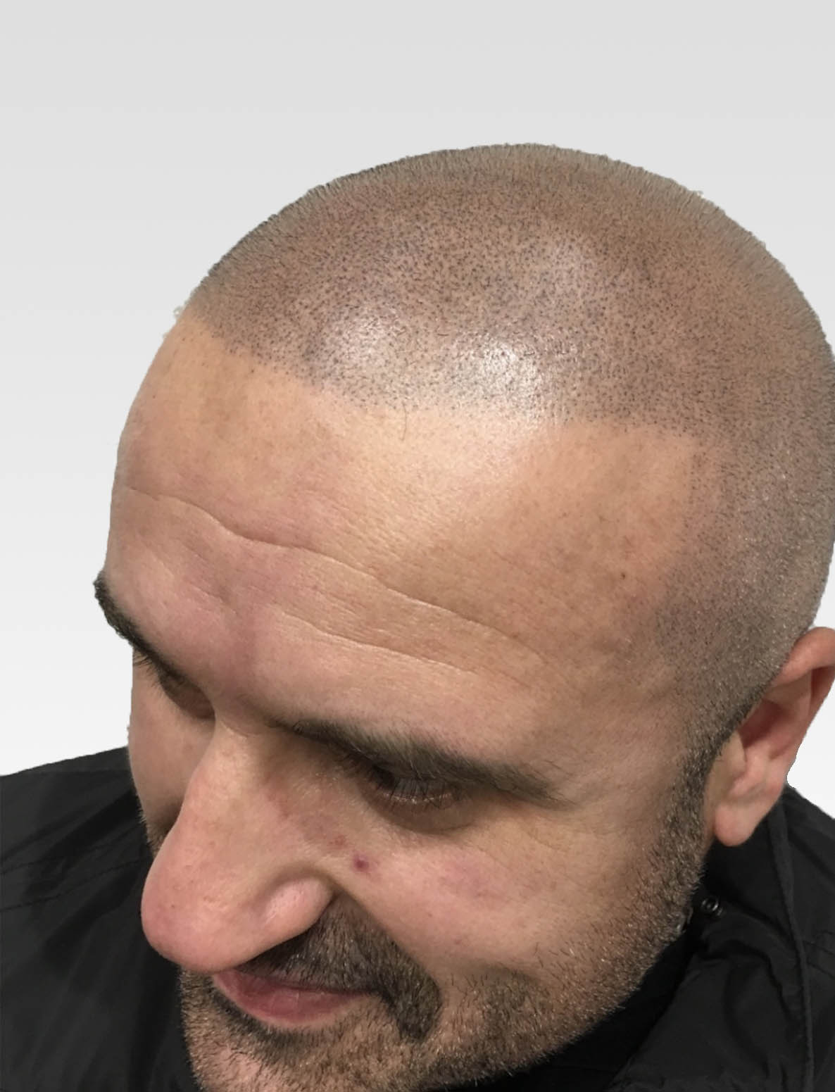 Defined SMP hairline