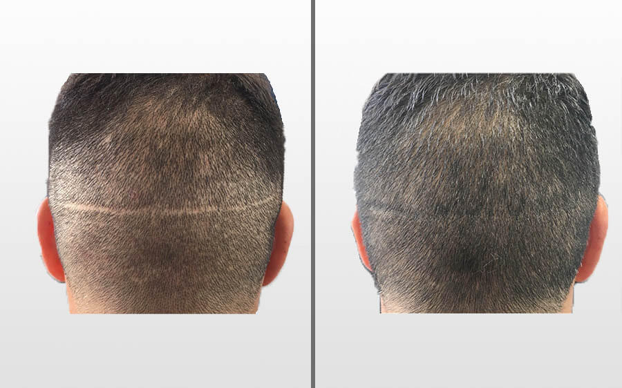 SMP to Cover Hair Transplant Scars Before and Afters London