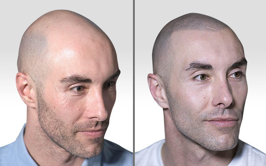Scalp Micropigmentation before and afters