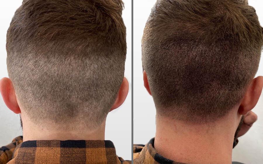 Scalp Micropigmentation Results Birmingham