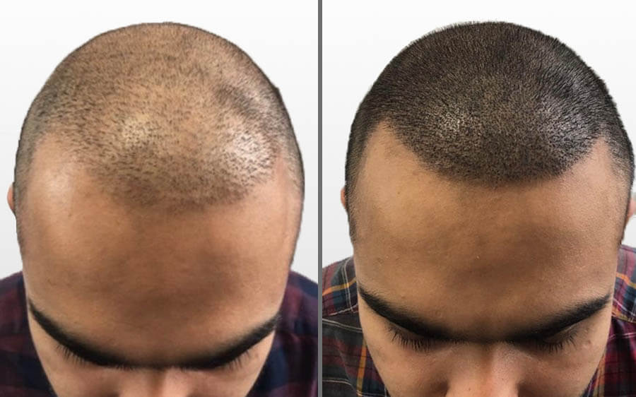 Scalp Micropigmentation Results London