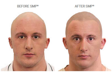 smp treatment for alopecia hair loss