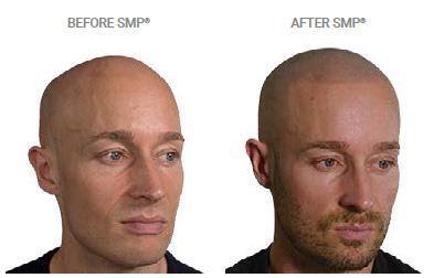 Male Pattern Baldness hair loss treatments