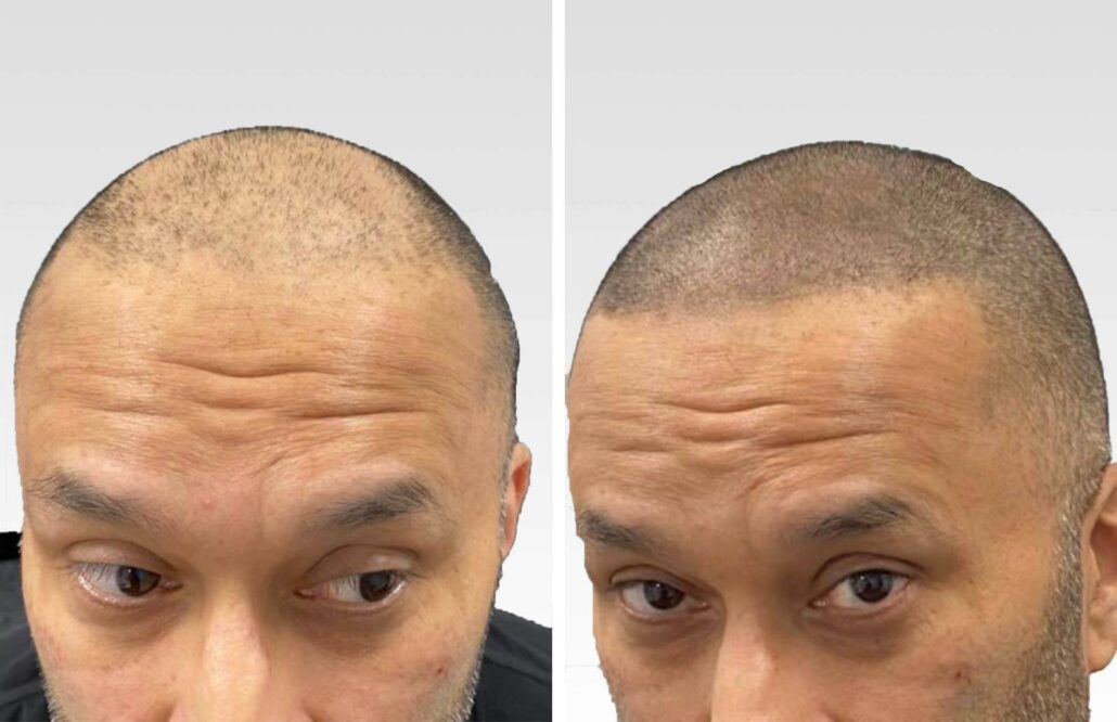 Before and After SMP treatment