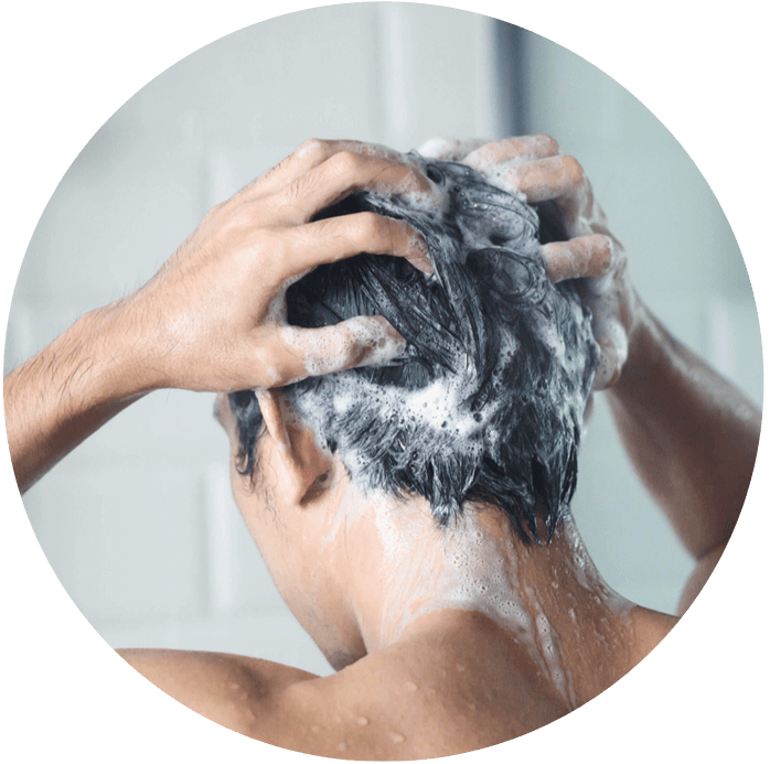 male hair loss products