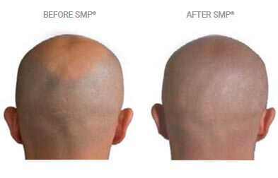 smp for head shaving