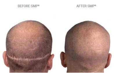 smp for scars